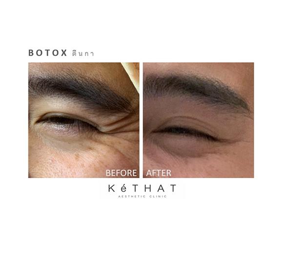 Botox ตีนกา