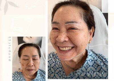 Botox ลดริ้วรอยอายุ